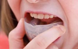 ¿Cuál es la edad para poner una ortodoncia?