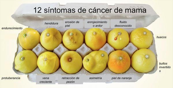 señales alerta cancer mama