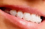 ¿A partir de qué edad se recomienda colocar ortodoncia en niños?