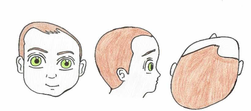 plagiocefalia